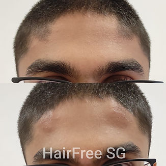 Mens%20Electrolysis%20Hairline%20Removal