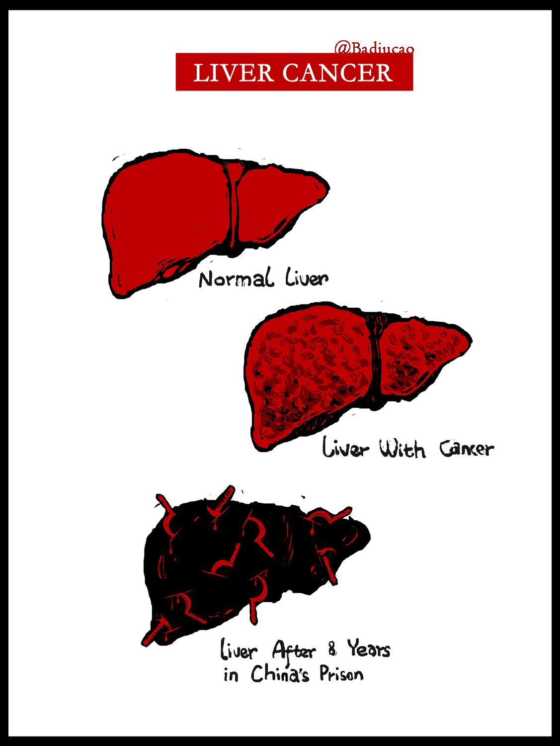liuxiabo liver cancer