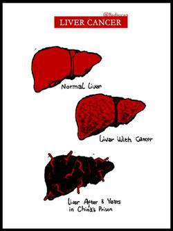 liuxiabo liver cancer