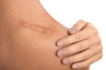 woman-with-scar-her-shoulder.jpg