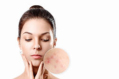 young-woman-with-acne-skin-in-zoom-circl
