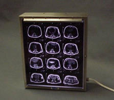 Single stainless steel frame wall mount x-ray box