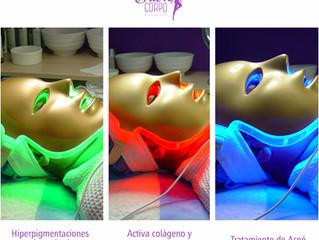 Peeling con Luminoterapia o con Bioestimulación Lumínica