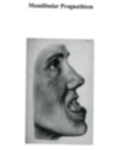man teeth.jpg