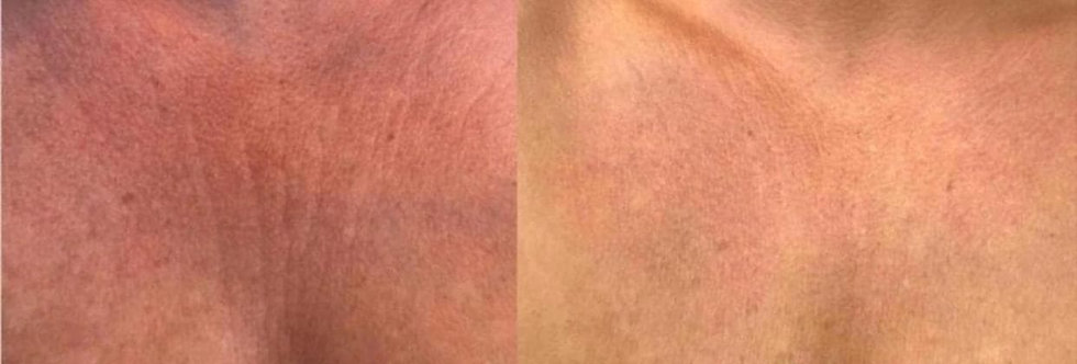 Firming/Cellulite Cream