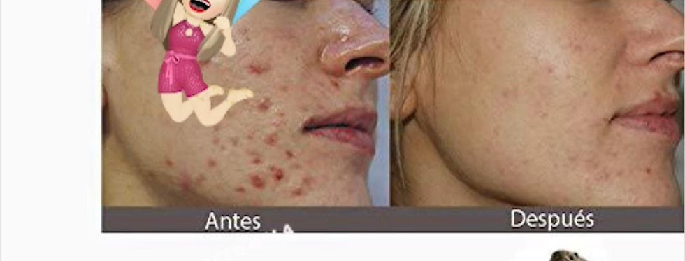 Jabón y Crema Facial