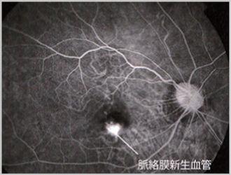 むさしこやま眼科 脈絡膜新生血管