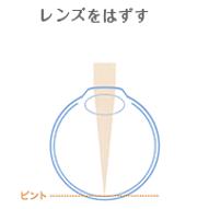 むさしやま眼科 オルソケラトロジー(ナイトレンズ)