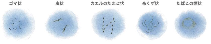 むさしこやま眼科 飛蚊症