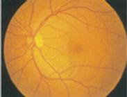 むさしこやま眼科 糖尿病網膜症