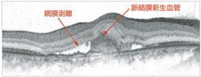むさしこやま眼科 加齢黄斑変性