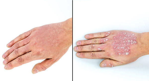 Psoriasis natural treatment results
