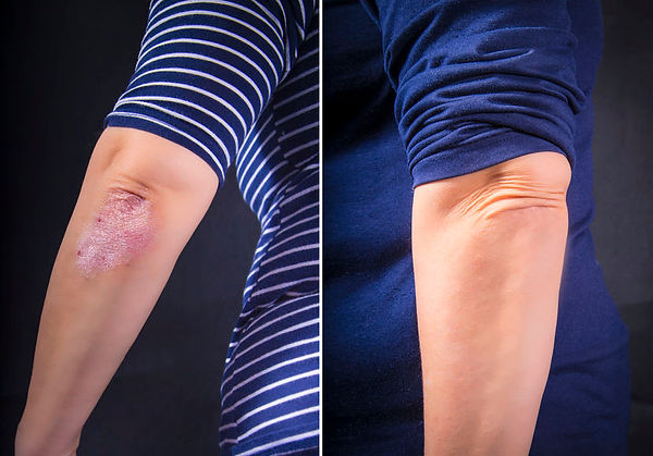 Before and After Psoriasis kit 2.jpg