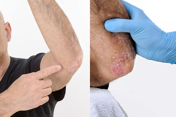 Before and after psoriasis dead sea treatment