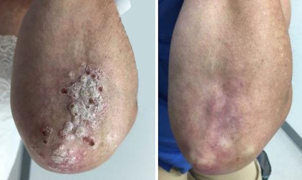 לפני ואחרי טיפול.JPG
