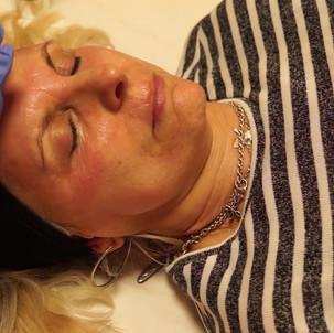 Meso Skin Rejuventation for fine lines and wrinkles