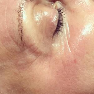 Meso Skin Rejuvenation for fine lines and wrinkles