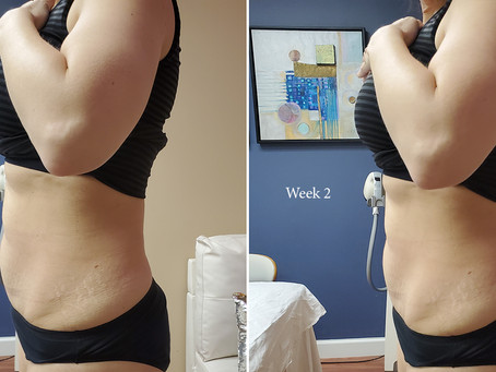 Shape Up with VelaShape III (w/before & after photos)