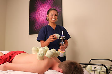 Cupping is another alternative from Acupuncture