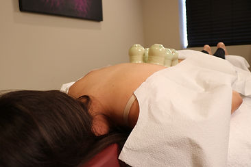 Relieving Neck Pain, Shoulder Pain, Back Pain, and a Pinch nerve with Cupping