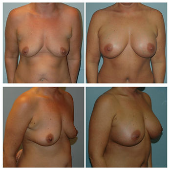 Breast Augmentation before and after Implants NJ