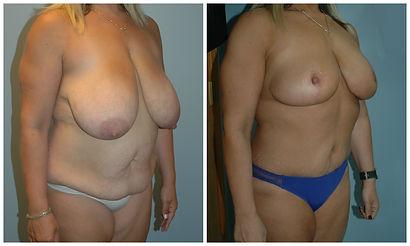 Mommy Makeover Tummy Tuck Surgery NJ
