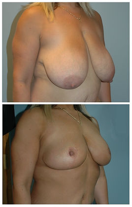 Breast Lift Mastopexy NJ before and after