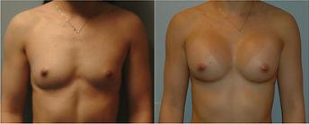 Breast Augmentation nj silicone 350cc mentor