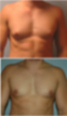 Gynecomastia before after nj