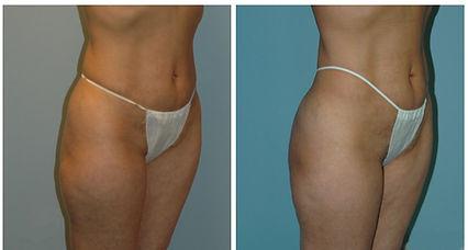 NJ Liposuction Plastic Surgeon