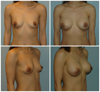 before and after breast augmentation mentor implants nj