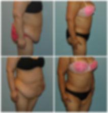 Abdominoplasty NJ Tummy Tuck before after