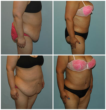 Abdominoplasty NJ Tummy Tuck before after