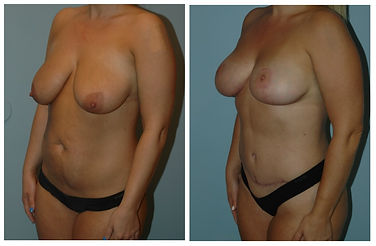 Mommy Makeover Plastic Surgery NJ