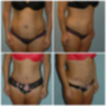 Abdominoplasty Tummy Tuck NJ Before After`