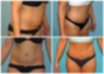 Abdominoplasty Tummy Tuck NJ Before After