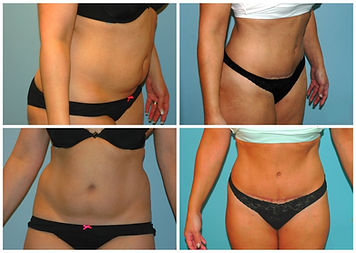 Abdominoplasty Tummy Tuck NJ Before After