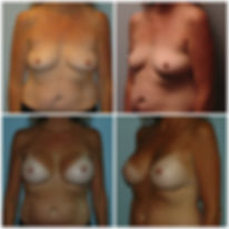 NJ Implants Silicone Breast Augmentation inspira