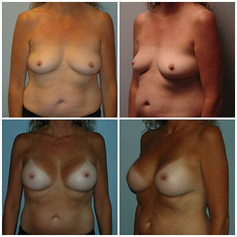NJ Implants Silicone Breast Augmentation inspira