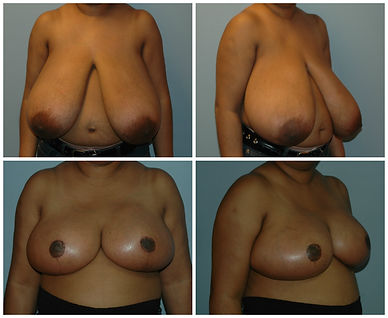 breast reduction mammoplasty nj