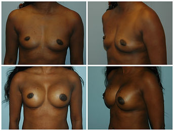 Breast Augmentation NJ Silicone Saline Gummy Bear
