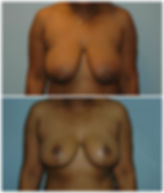 NJ Before after Breast Lift Mastopexy