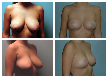 nj Breast Lift Before and after mastopexy