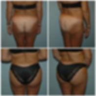 bbl nj surgery brazilian butt lift