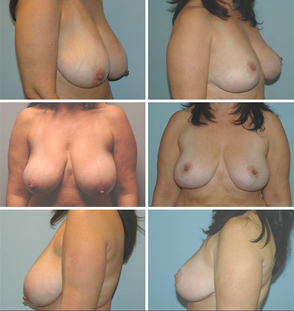 before and after  mastopexy breast lift NJ