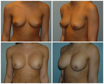 Breast Augmentation Implants New Jersey silicone inspira