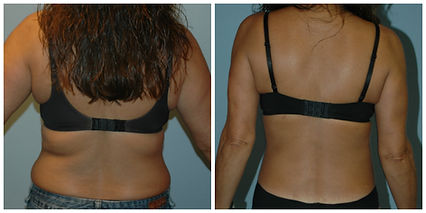 NJ Liposuction before after