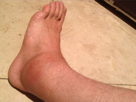 Inflammation, Sprained Ankles, and Sensitivity