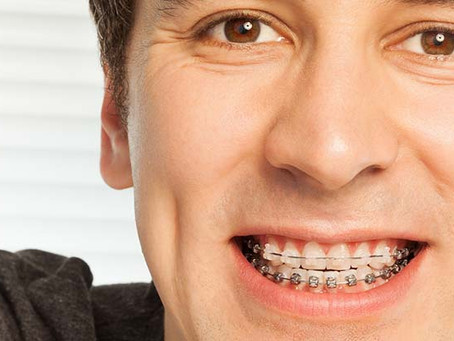 How Your Tongue can Affect Braces