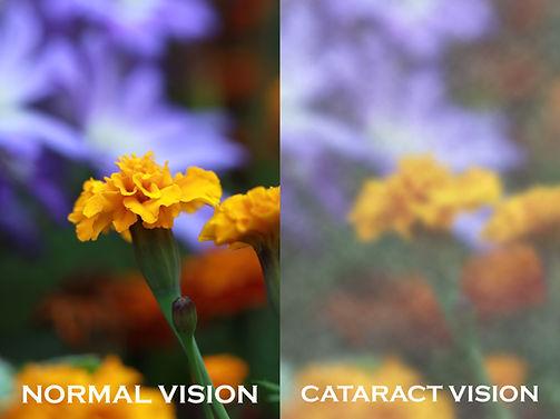 cataractvision.jpg